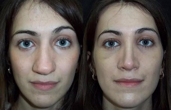 Ринопластика носа сколько заживает