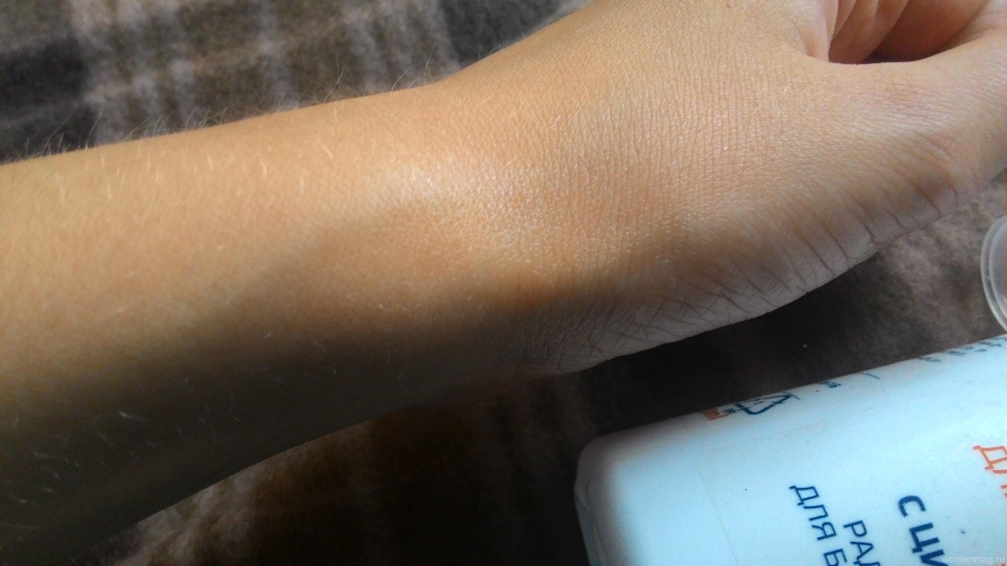 Лосьон «Анти-Акне» для проблемной кожи от «До и после»