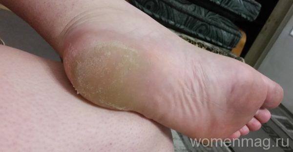 Как почистить пятки от огрубевшей кожи био гелем